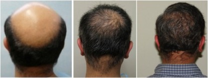 Hair transplant for Norwood 7 baldness.