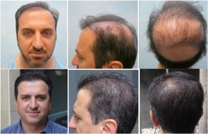 Beard hair used to correct prior botched hair transplant surgery.