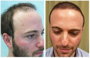 Another photo example of body hair transplant results.