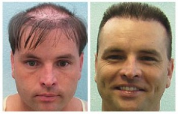 Body Hair Transplant Results - BHT - DermHair Clinic L.A. 1-310 ...