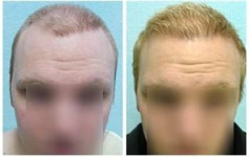 مثال آخر على نجاح استخدام شعر الجسم و الرأس