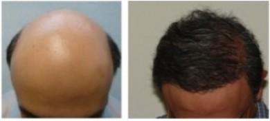 نتائج زراعة الشعر قبل و بعد.