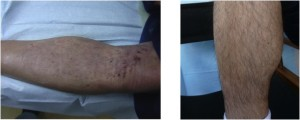 Lower leg donor area immediately post-surgery and after healing.