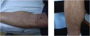 صورة للمنطقة المانحة من الساق بعد العملية مباشرة و يتبعها صورة لها بعد الشفاء.