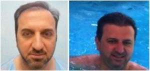 Patient able to swim post-procedure without the worry of a hairpiece or concealing powder.