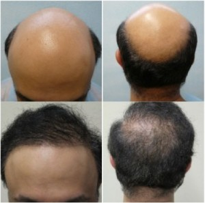Hair transplant results on severely bald patient