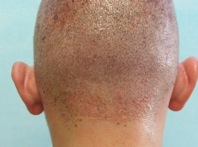 Hair transplant results| wound & donor healing