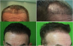 Hair transplant results photographed at DermHair Clinic.