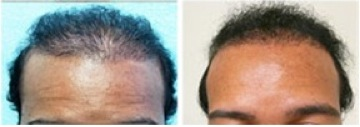 African American FUE Hair Transplant|successful results