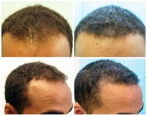 African American FUE Hair Transplant  5