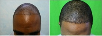 African American FUE Hair Transplant, before and after result of a Dr U patient