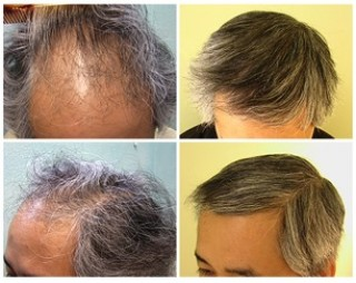 Ethnic Hair Loss| Asian Hair Restoration|FUE transplant|hairline, temples & frontal scalp