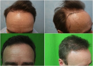FUE hair transplant repair results|body hair grafts|patient photos