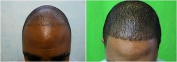 FUE Hair Transplant |black patient|before & after
