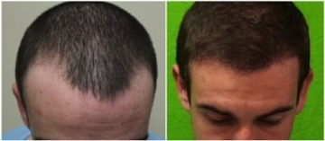 FUE hairline transplant results|depleted temples|patient photos -before&after