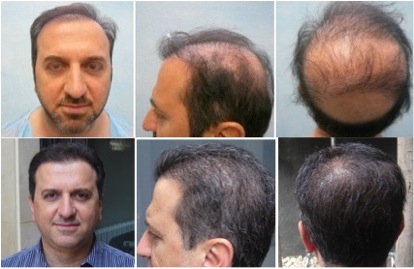 Best FUE Hair Transplant - DermHair Clinic LA 1-310-318-1500
