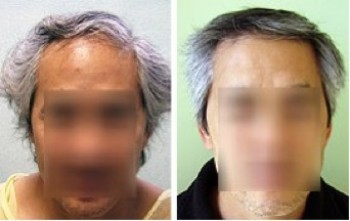 FUE Transplant| Asian Patients|Ethnic Hair Loss