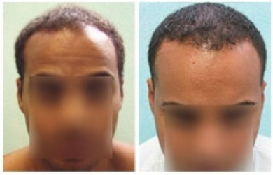 Ethnic Hair Loss | African American male|FUE hairline restoration