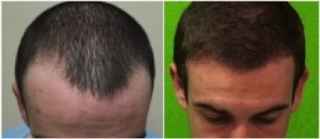 Grow Hair | Hair transplant results