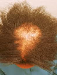hair loss african american women 2