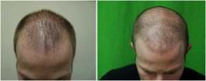 Receding hairline advanced with low level of FUE grafts using uGraft.