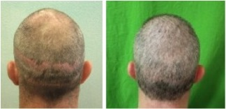 Strip scars caused by strip harvesting, corrected by FUE.
