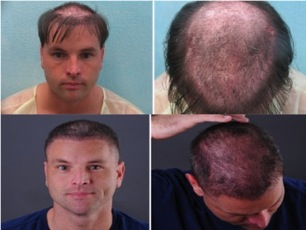 This patient had his hairpiece sewn into his scalp. Severe infections and scarring ensued.