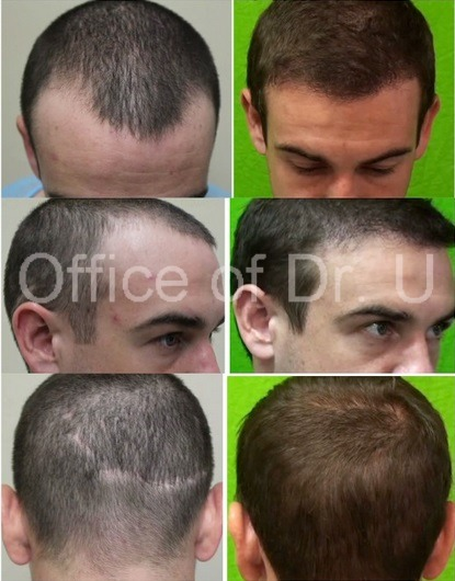 With proper planning even young patients are good candidates for UGraft FUE