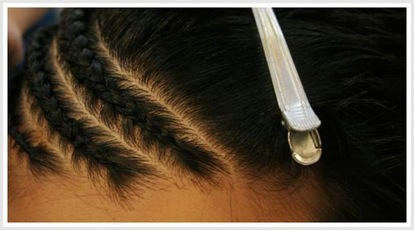 Traction Alopecia |corn rows|tight braiding