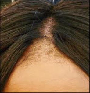 Traction Alopecia |front|hairline