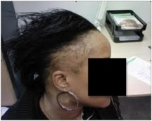 Traction Alopecia|sides of head|female