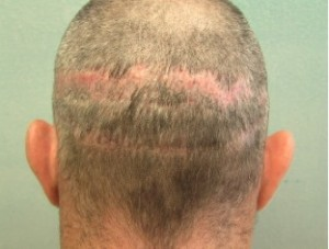 Strip scar coverage with FUE | best Advanced FUE hair transplant surgeon| body hair grafts