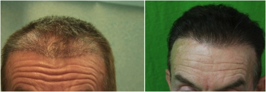 Repair of botched hair transplant| best FUE hair transplant surgeon| Advanced FUE|body hair