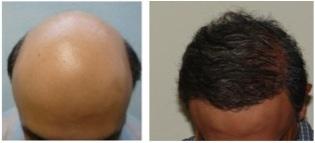 Hair Loss Info | Treating Severe Baldness