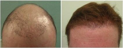 Hair Loss Info | hairline creation through FUE
