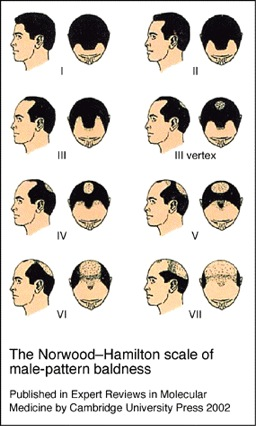 Hair Loss Info|male pattern baldness stages|Hamilton Norwood