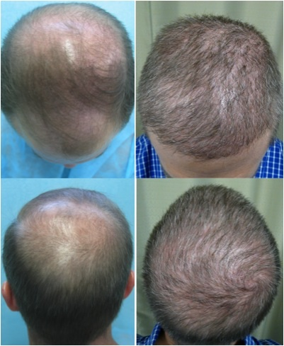 Treatment for Severe Baldness 6