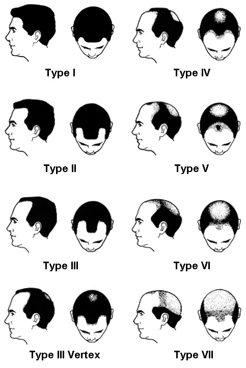 Treatment for Severe Baldness 1