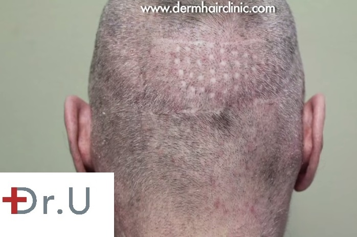 Punch Graft Scars| Scalp Deformity- Patient Before BHT Procedure for Repair