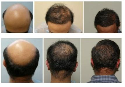 Image result for Advancements in Hair Restoration and the Possibility of Cloning