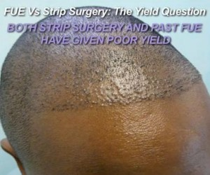 FUE and Restoring Strip Scar Surgery