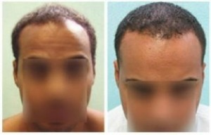 African American Hair Transplant Procedures