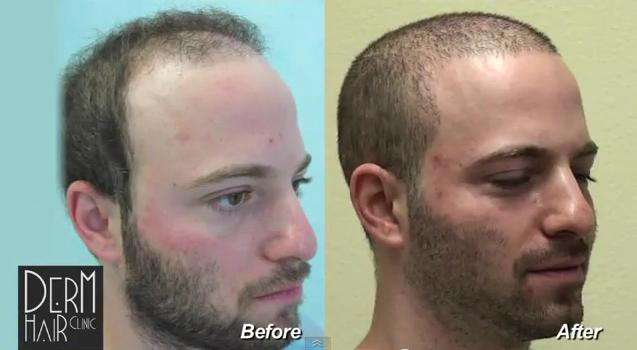 how to grow hair follicles on head