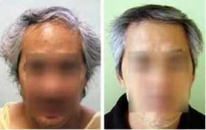 Ethnic Hair Loss Surgical Solutions