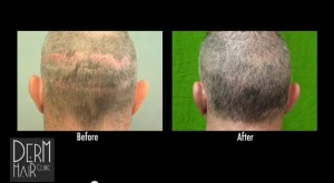 Before and After of Facial Head to Hair Transplant