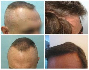 Before and After of Surgical Hair Removal Transplant