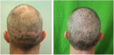 Before and After of Hair Transplant Repair