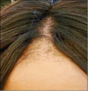 what Causes Traction Alopecia