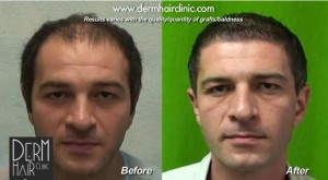Before and after results of FUE hair transplant with uGraft