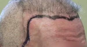 Before Artas Hair Transplantation